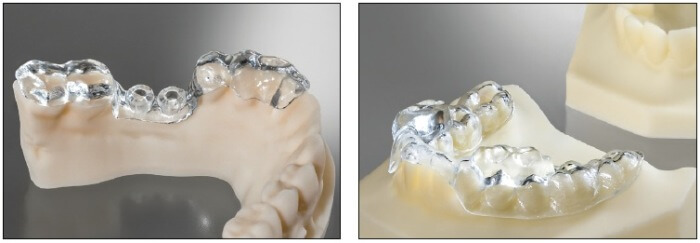 Laboratory 3D Printing from DETAX Freeprint® ortho