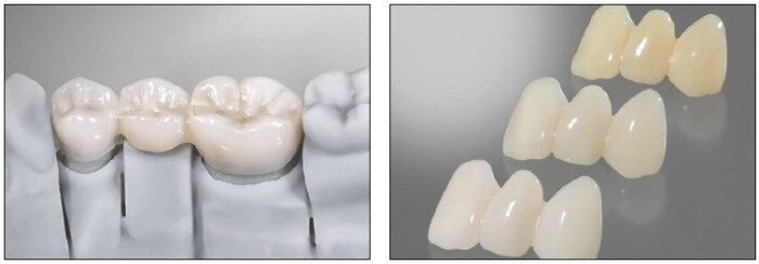Freeprint® temp - crowns & bridges Detax